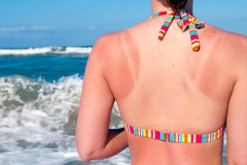Aký UV faktor vybrať, aby ste sa nespálili?