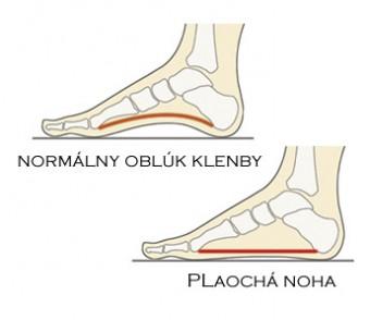 Prezuvky: by mali podporovať správnu klenbu nohy